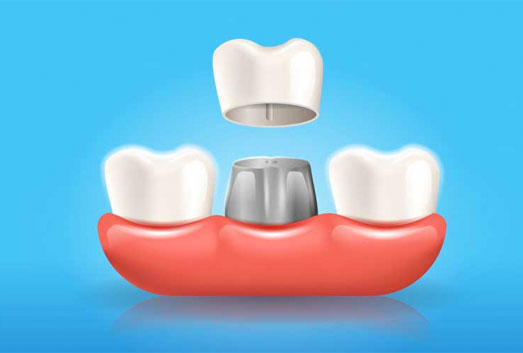 dental crowns near you