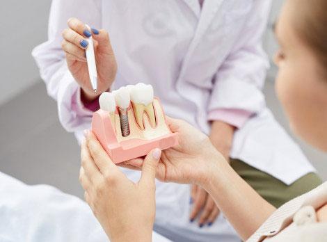 dental implans in san diego
