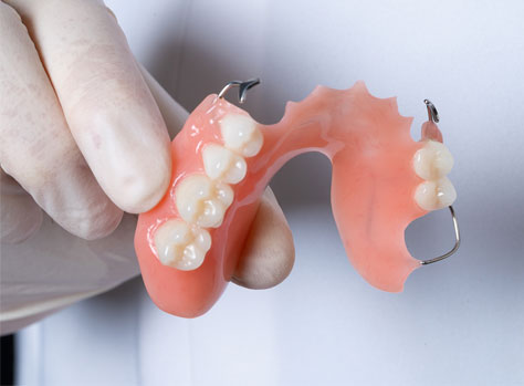 partial dentures in san diego