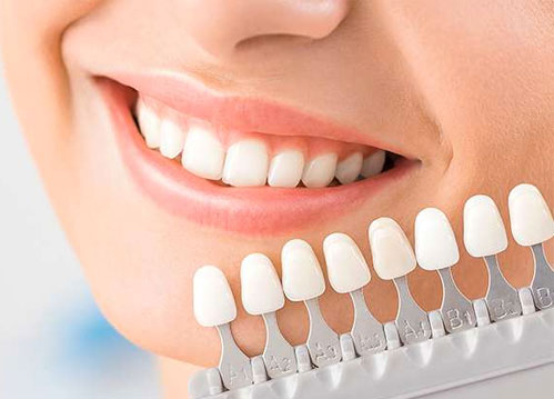 porcelain veneers near you