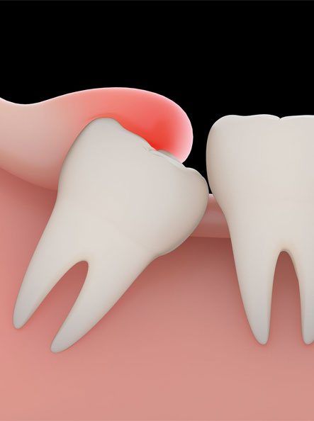 wisodm tooth extraction near you
